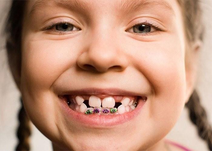 از کجا بدانیم که به ارتودنسی دندان احتیاج داریم؟